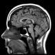 Amorotik kalıtsal akıl geriliği 18